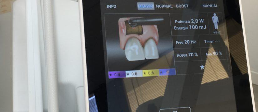Un laser in odontoiatria non esiste