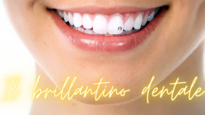 Il brillantino dentale